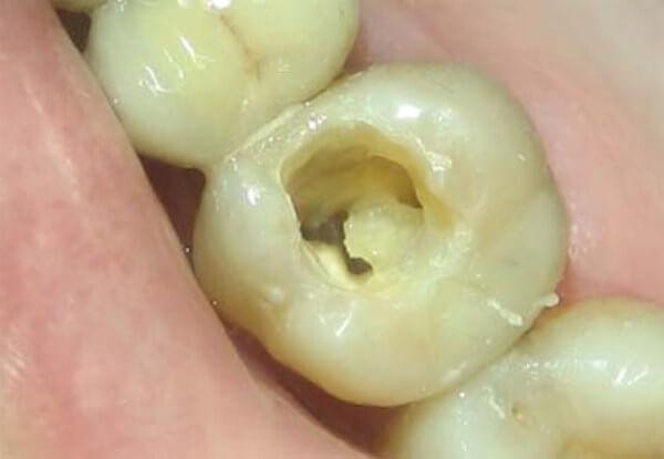пересушивание зуба после очистки