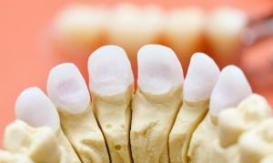 какие лучше всего вставить зубы