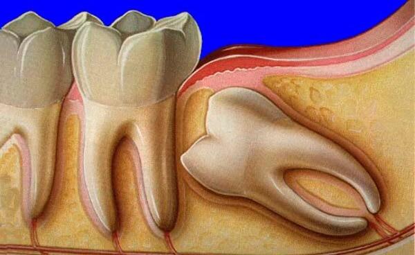 нюансы появления зубов мудрости