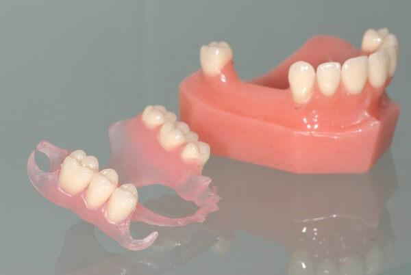 частично съемные протезы зубов