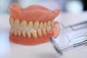 какие съемные зубные протезы самые лучшие