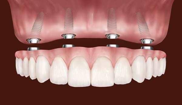 протезы зубов при полной адентии