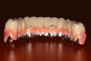 вставные зубы вместо моляров
