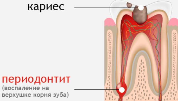 хронический периодонтит симптомы