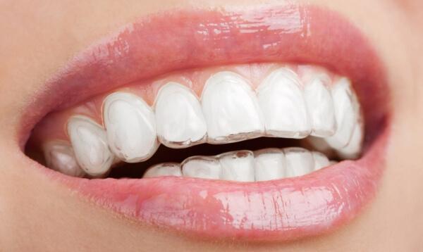 Отзывы от пациентов стоматологий