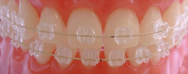 брекеты из пластика на зубах