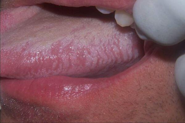 Лейкоплакия полости рта: симптомы, этиология, лечение