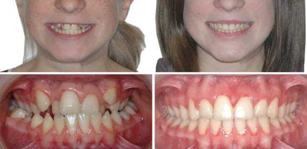 Брекеты: фото до и после