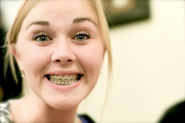 брекеты на внешней стороне зубов