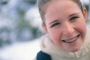 сколько стоят брекеты на зубы цена подростку
