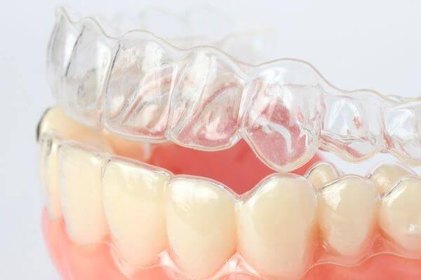 описание ортодонтических кап