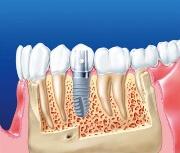какой зуб лучше вставить если нет корня