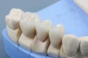 коронки на зубы какие лучше отзывы