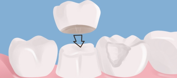 коронки на зубы какие лучше всего
