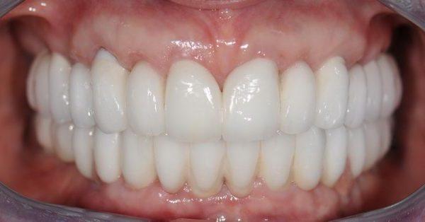 зубные коронки из керамики