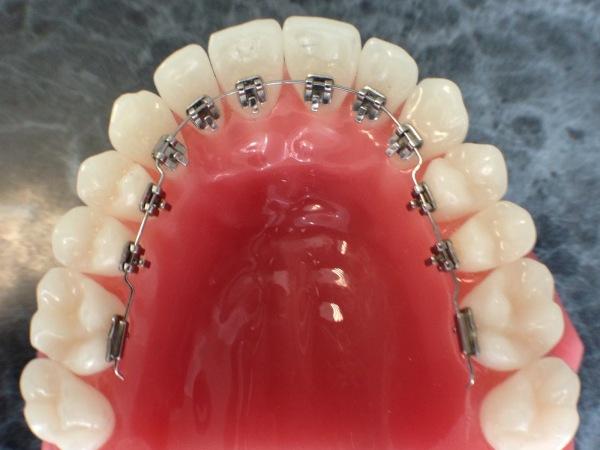 брекеты на внутренней стороне зубов