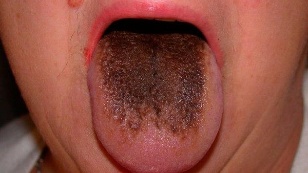как образуется коричневый налет на языке