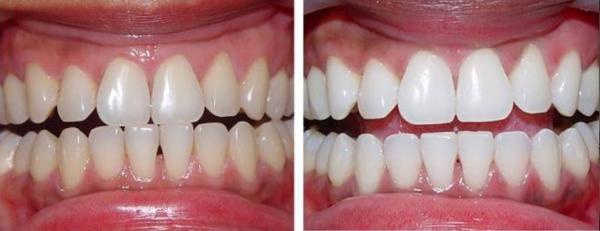 как проводится лазерное отбеливание зубов