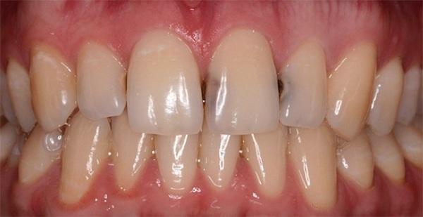 вылечить зубы перед отбеливанием