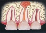 периодонтит зуба фото