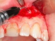 операция резекции в стоматологии