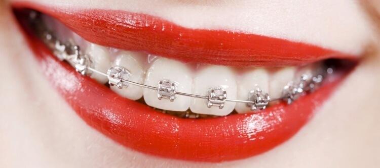 сколько стоят брекеты на зубы пациентов