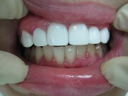 виниры на зубы цены