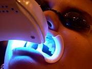 zoom отбеливание зубов отзывы и фото