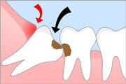 растёт зуб мудрости симптомы