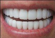 цена коронки на зуб из металлокерамики