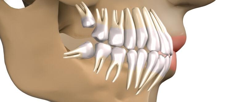 зуб мудрости растет в щеку и сильно болит