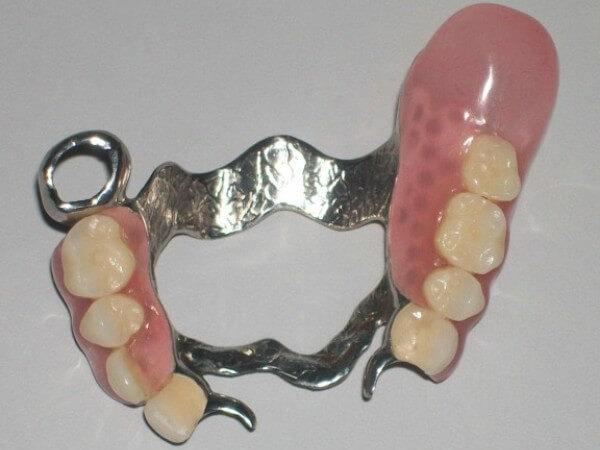 разновидности бюгельных протезов для верхней челюсти