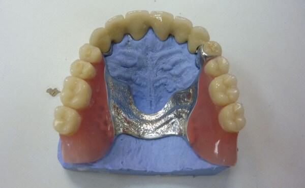 недостатки бюгельных протезов на верхнюю челюсть