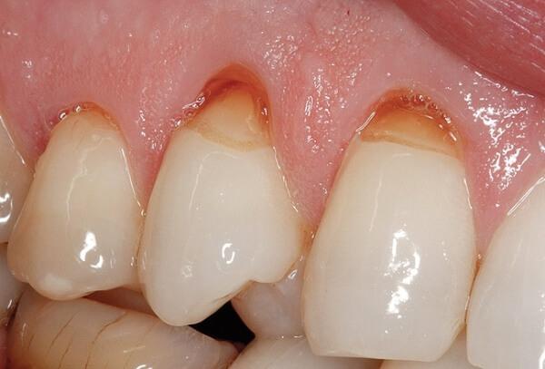 этиология клиновидного дефекта зубов