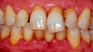 перечень причин вызывающих клиновидный дефект зуба