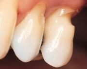 клиновидный дефект твердых тканей зуба