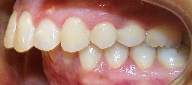 дистальный прикус зубов