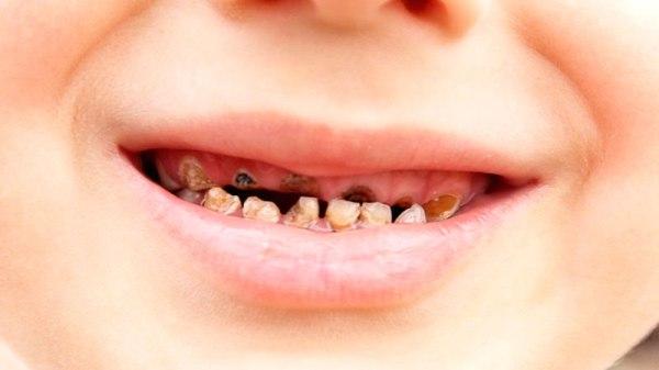 к чему могут привести гнилые зубы