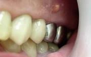 киста корня зуба симптомы изображение