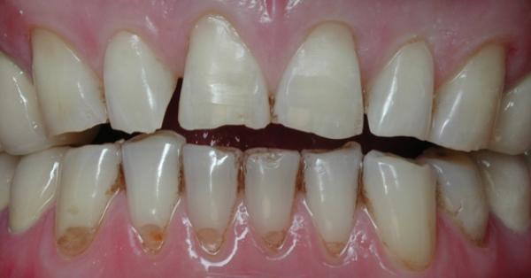 почему крошатся и зубы что делать