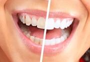 отбеливание зубов маслом чайного дерева отзывы стоматологов