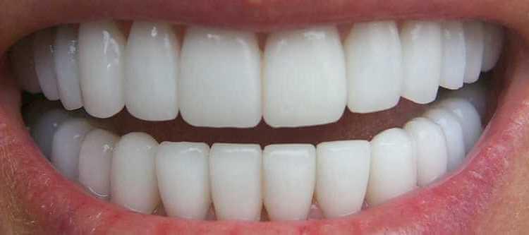 наращивание зубов цены для пациентов