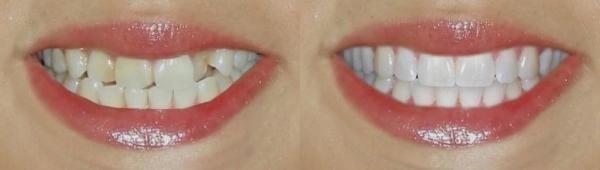 вид наращивания зубов