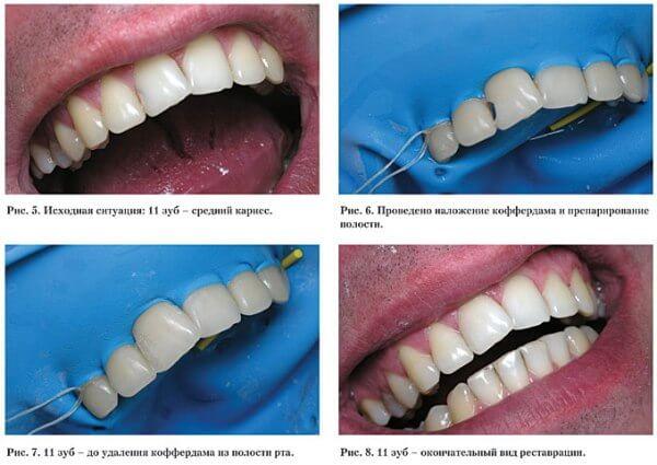 Композитные материалы чтобы нарастить зуб