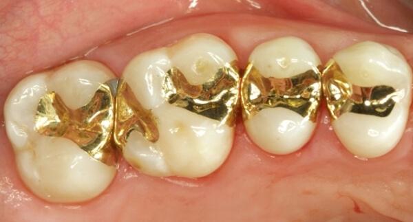 как нарастить зуб вкладками