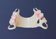 протез зубов из нейлона