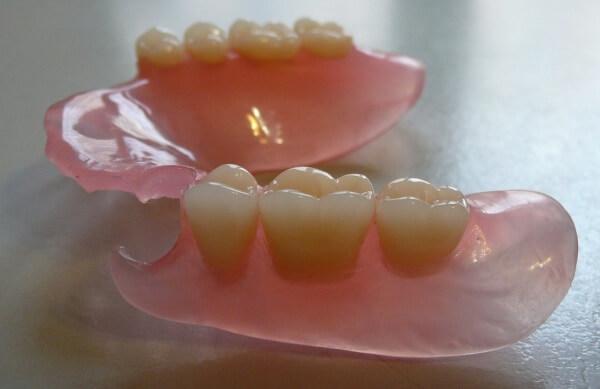 минусы зубных протезов из нейлона