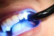 как отбелить зубы лазером