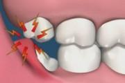 лезет зуб мудрости болит что делать
