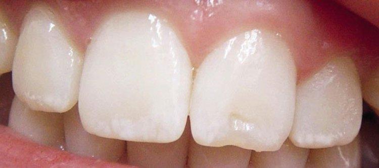 на зубах у человека белые пятна
